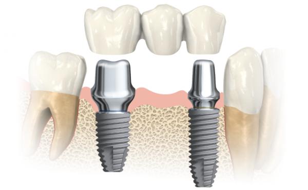 imp_dental_mm